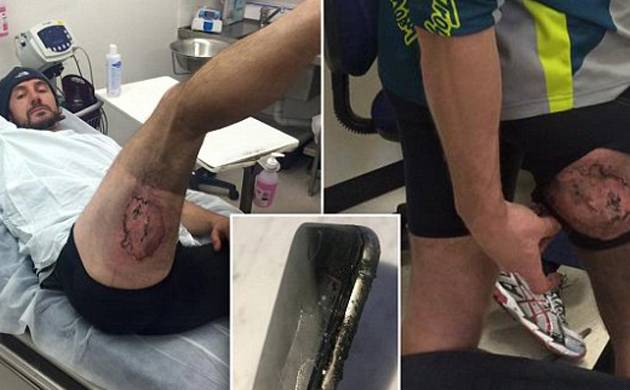iPhone 6 explodes in back pocket of Sydney cyclist
