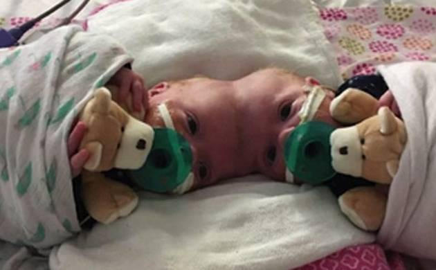 Rare surgery: Doctors successfully separate twin girls joined at the