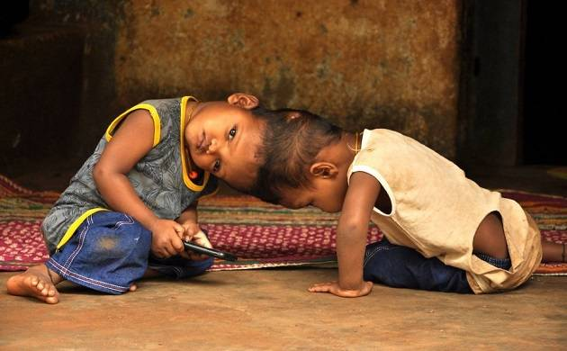 Conjoined twins from Odisha successfully separated in marathon surgery at AIIMS