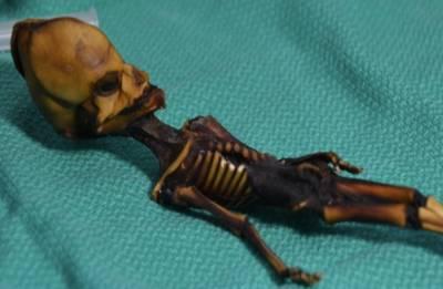 'Alien' like Atacama skeleton is actually of HUMAN fetus, reveal DNA tests