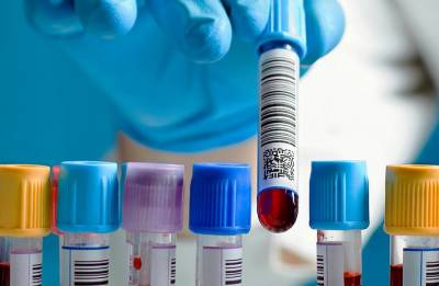 How new blood test can detect pancreatic cancer quickly, study reveals