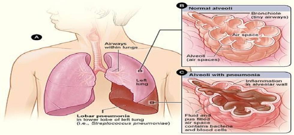 Pneumonia, major cause of death in India (Photo: Facebook)