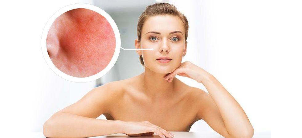Easy home remedies to treat eczema (Photo: File Photo)