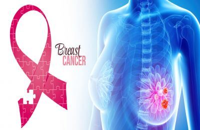 Breast Cancer: 'Access to detection remains a key challenge'
