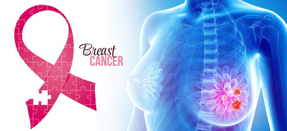 Access to early detection of breast cancer remain a key challenge for most women in developing and third world countries (Image: Ramesh Negi /NewsNation.in)