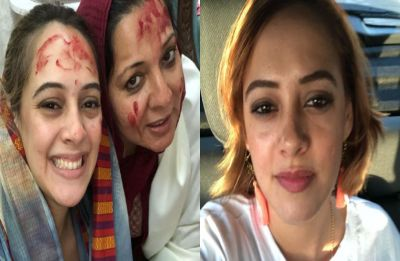 Yuvraj Singh's wife Hazel Keech undergoes nose surgery, thanks her mother-in-law with a heartwarming post