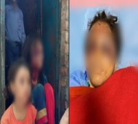 Brother's brutality ahead of Rakhi, gouges out sister's eyes for buying dress worth Rs 100