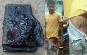 Xiaomi Redmi Note 4 explodes in pocket of owner, suffers injury